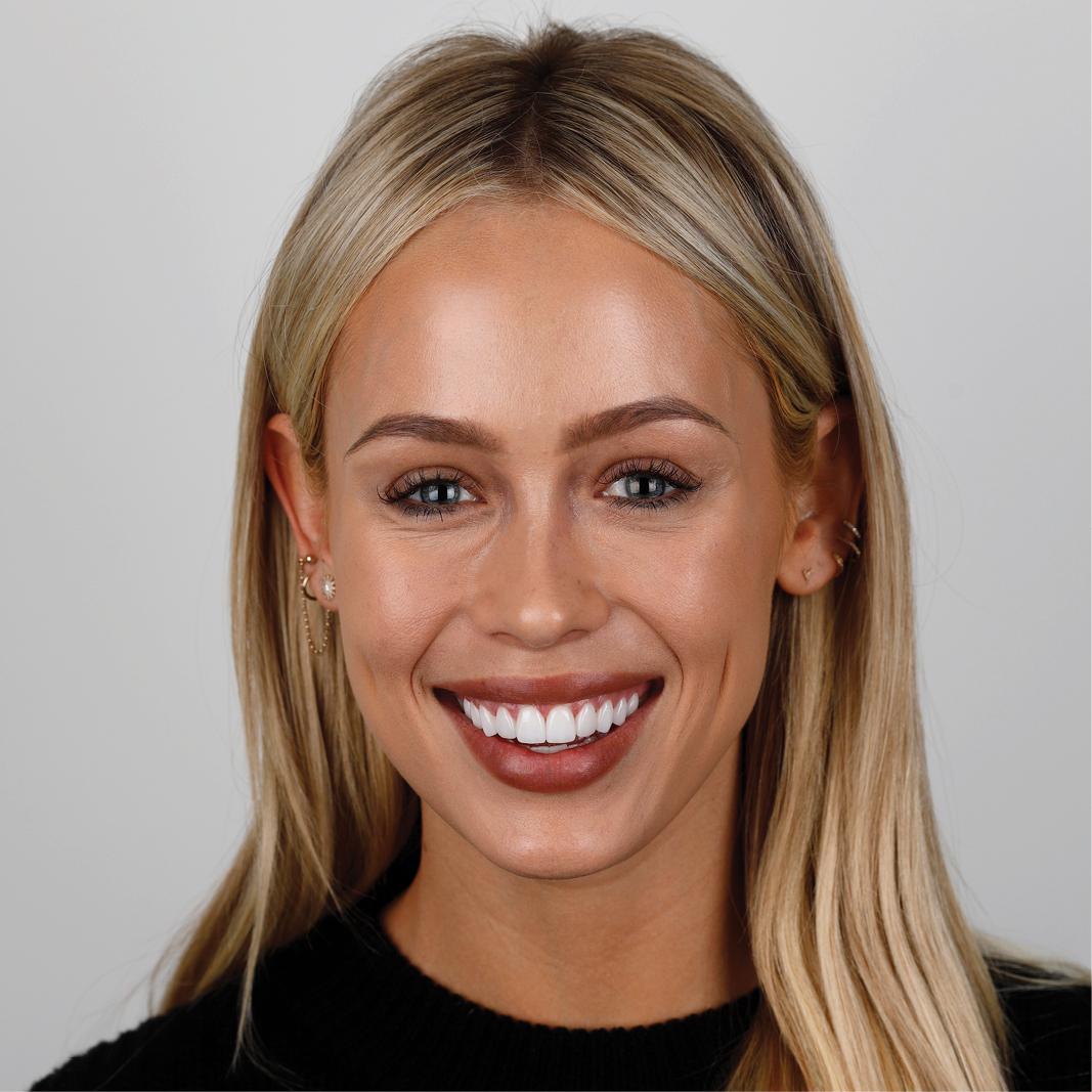dental veneer picture