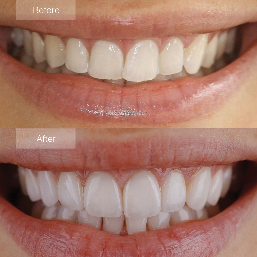 porcelain veneers before and after